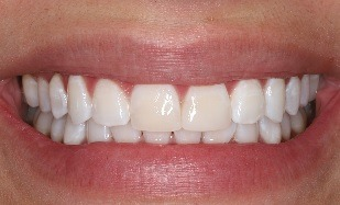 teeth whitening with front tooth veneers