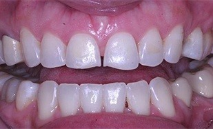 Top teeth with gap and odd shaping