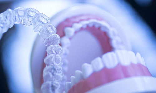 A clear Invisalign aligner in the foreground while a dental mouth mold sits open in the background