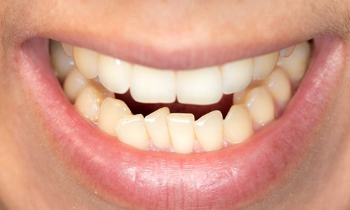 An up-close look at a person's crowded bottom row of teeth
