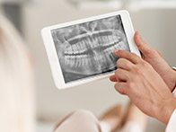 Tablet with digital dental x-rays