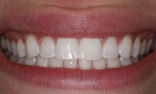 perfect teeth whitening