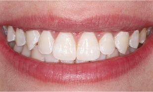 closeup of beautiful smile after whitening