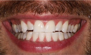 closeup Zoom Whitening results