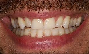 closeup of Zoom Whitening before